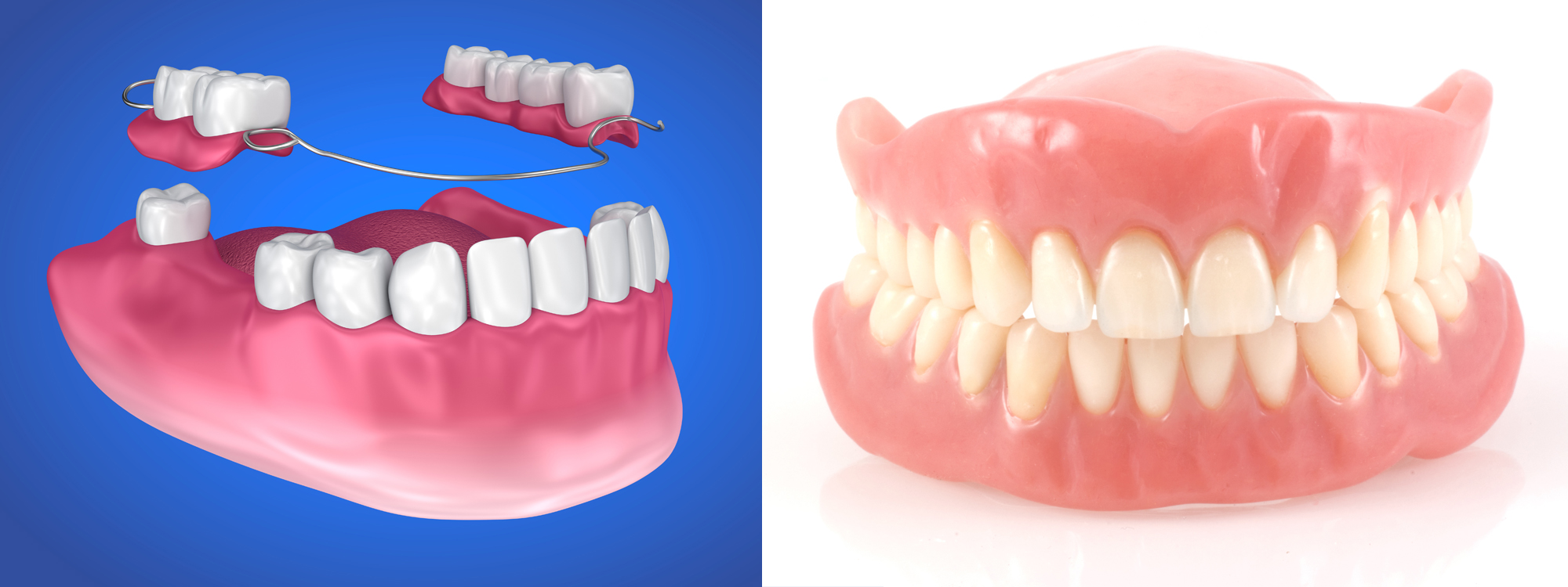 Partials and Dentures
