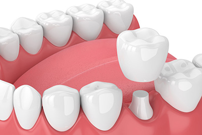 "Dental Crowns: ""Then"" and ""Now"""