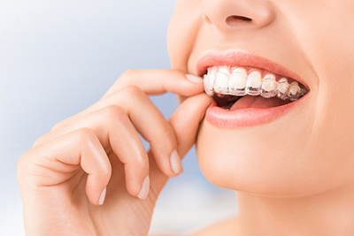 """Everything You Need To Know About Invisalign """"Invisible"""" Braces"""