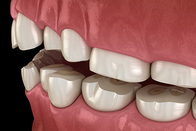 How to Determine if You're Grinding Your Teeth and Why it's Important to Stop