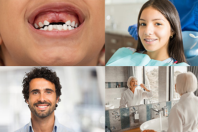 What are the Stages of Tooth Development?