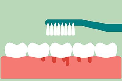 The Hidden Dangers of Gum Disease