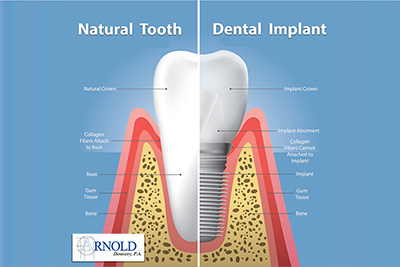What are dental implants? What are the advantages of dental implants?