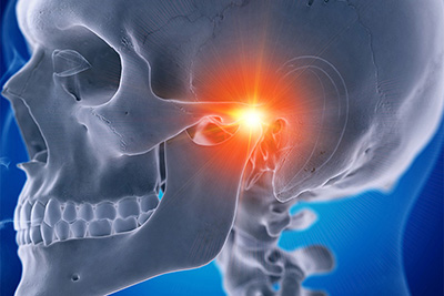 What is Temporomandibular Joint Dysfunction?