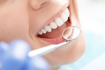 When are Fillings, Crowns and Bridges Necessary?