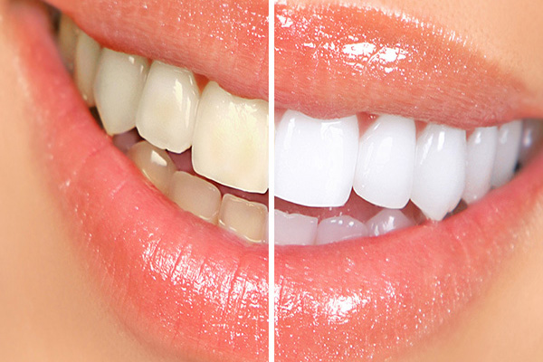 Cleaning and Whitening