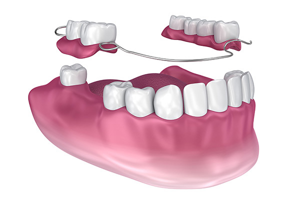 Dentures and Partials