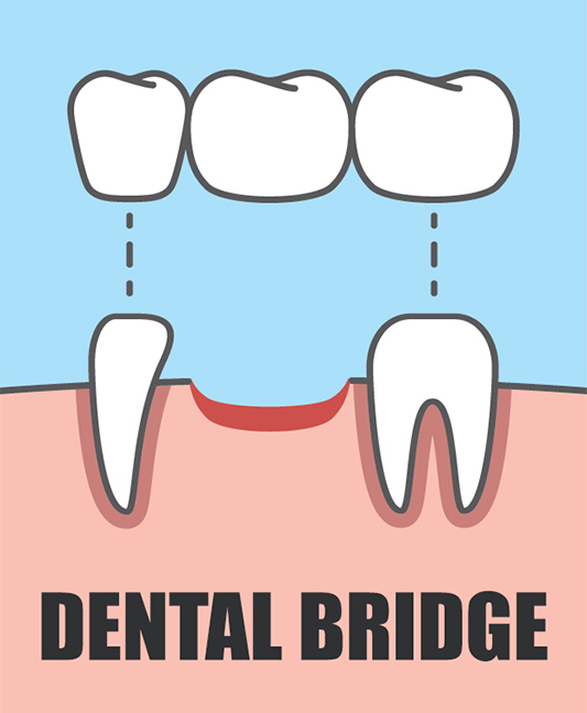 Dental Bridge