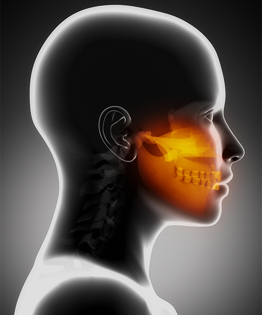 Dental Migraines